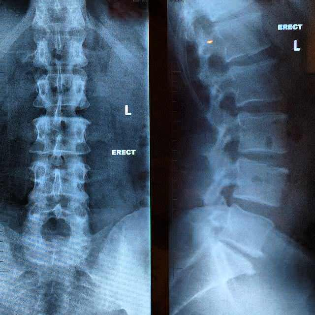 arthritis in a spinal xray